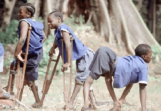 Medical Practitioner wants Nigeria to be Polio-Free