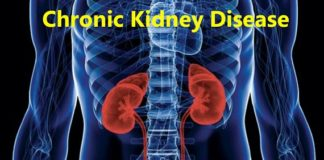 Scientists Found New Causes of Chronic Kidney Disease